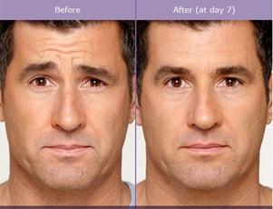 Centre M 233 Dico Esth 233 Tique Botox Rive Sud De Montr 233 Al